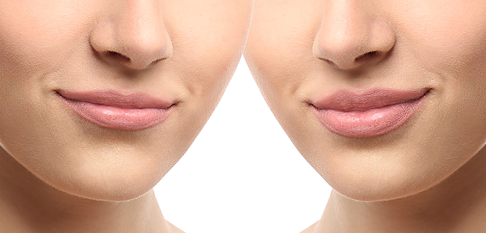 Woman lips before and after cosmetic procedure. Plastic surgery concept.